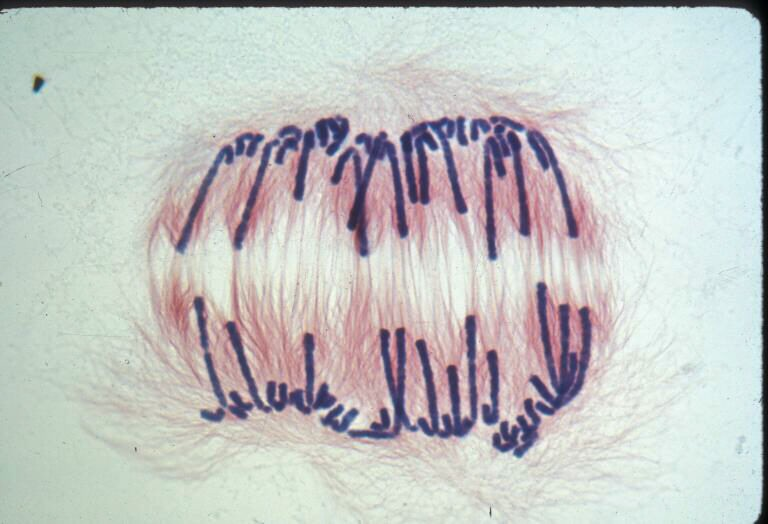 An African Globe Lily Cell During Mitosis